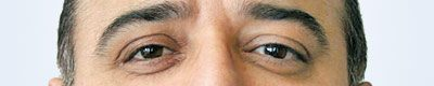Augenpaar-Versorgung-Kunstauge